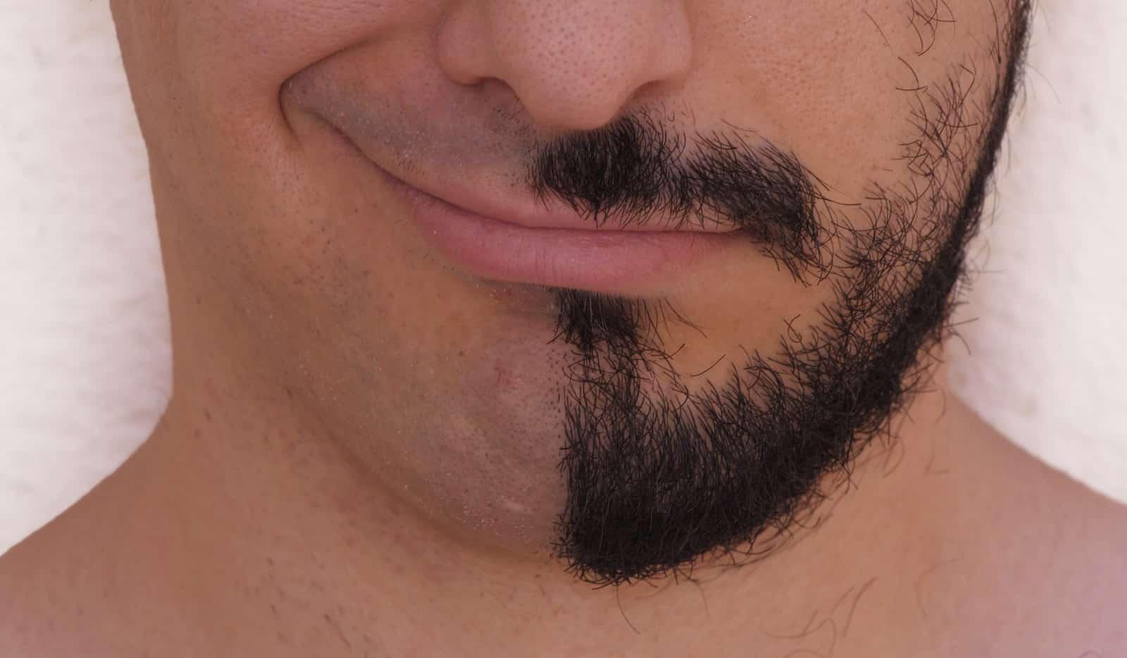 Kein Bartwuchs - Linke Gesichtshälfte